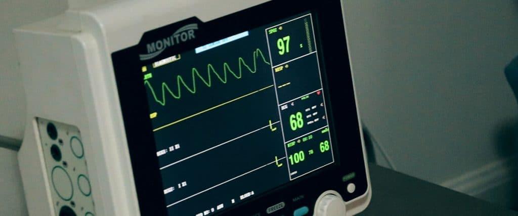 Electrocardiogram-Monitor