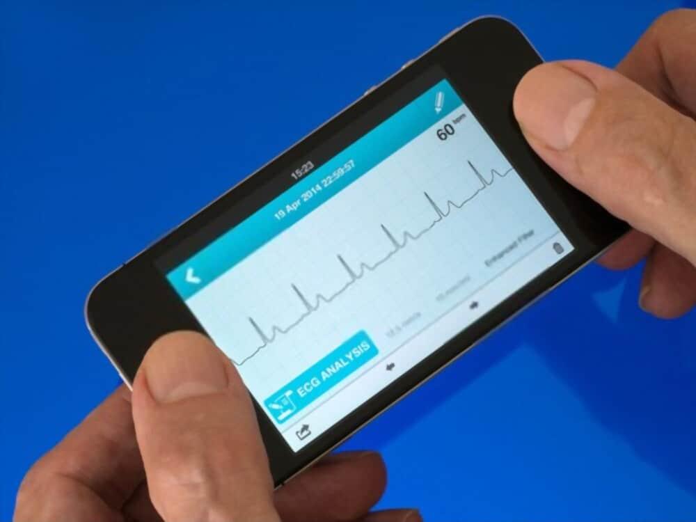 Top 6 EKG Apps
